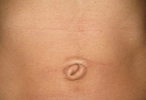 belly-button-surgery-medellin-before