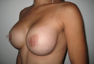 breast-augmentation-medellin-after