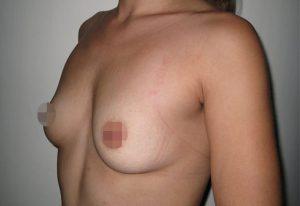 breast-augmentation-medellin-before