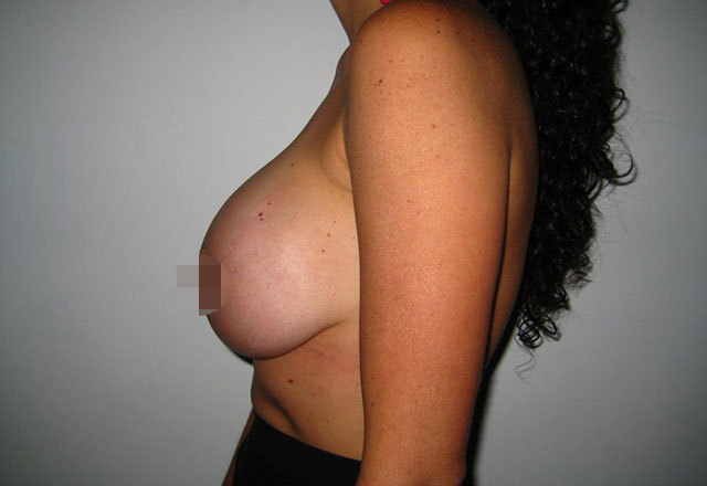 breast-lift-medellin-before