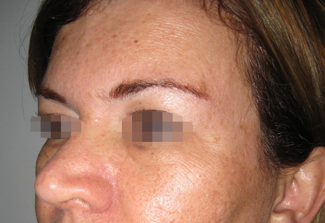 brow-lift-medellin-after