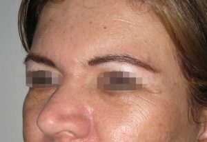 brow-lift-medellin-before