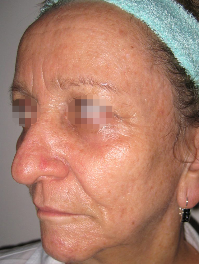 cheek-lift-medellin-before
