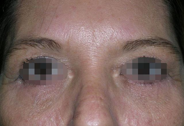eyelid-surgery-medellin-after