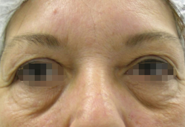 eyelid-surgery-medellin-before