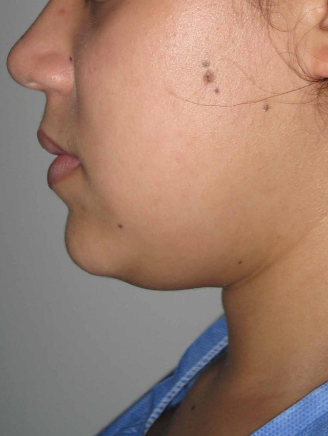 liposuction-medellin-before
