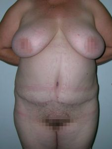 tummy-tuck-medellin-after