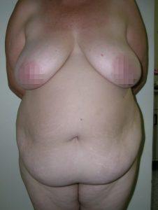 tummy-tuck-medellin-before