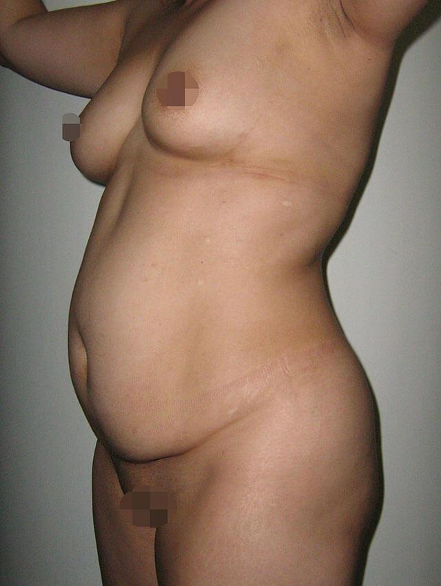abdominoplasty colombia