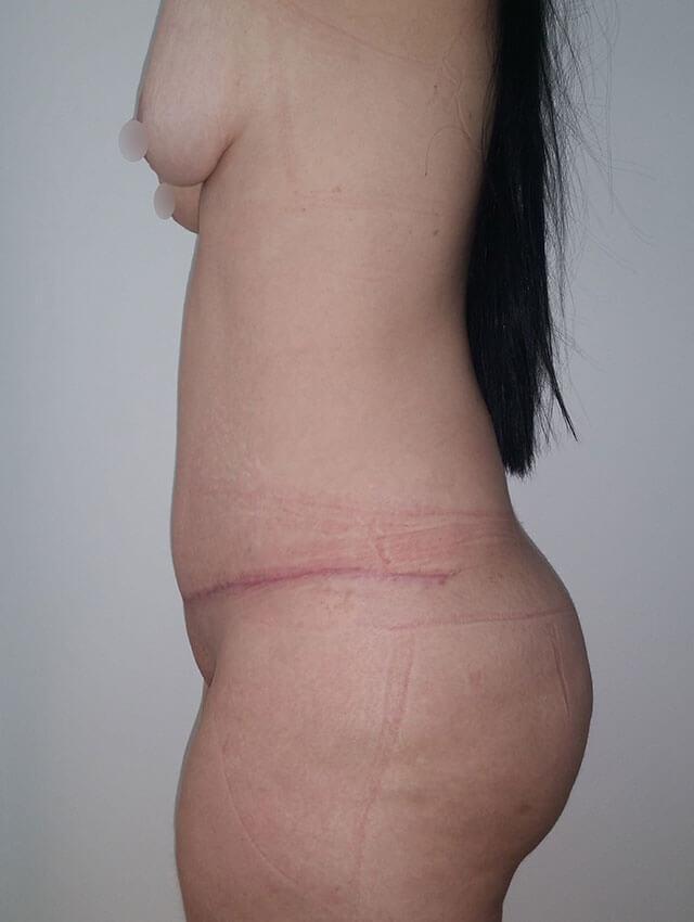 tummy surgery medellin