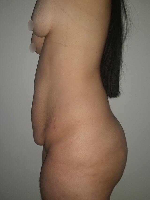 abdominoplasty medellin